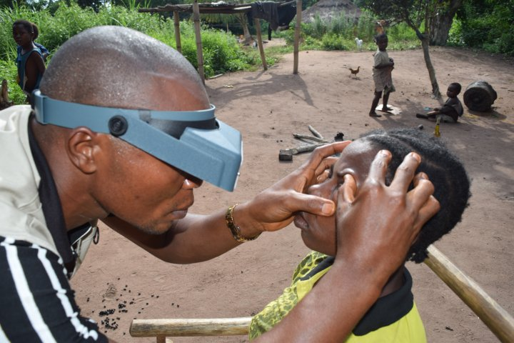 Before the COVID-19 pandemic, a trained grader uses a pair of loupes to examine a child's eyes for trachoma in DRC. Photo credit: World Vision